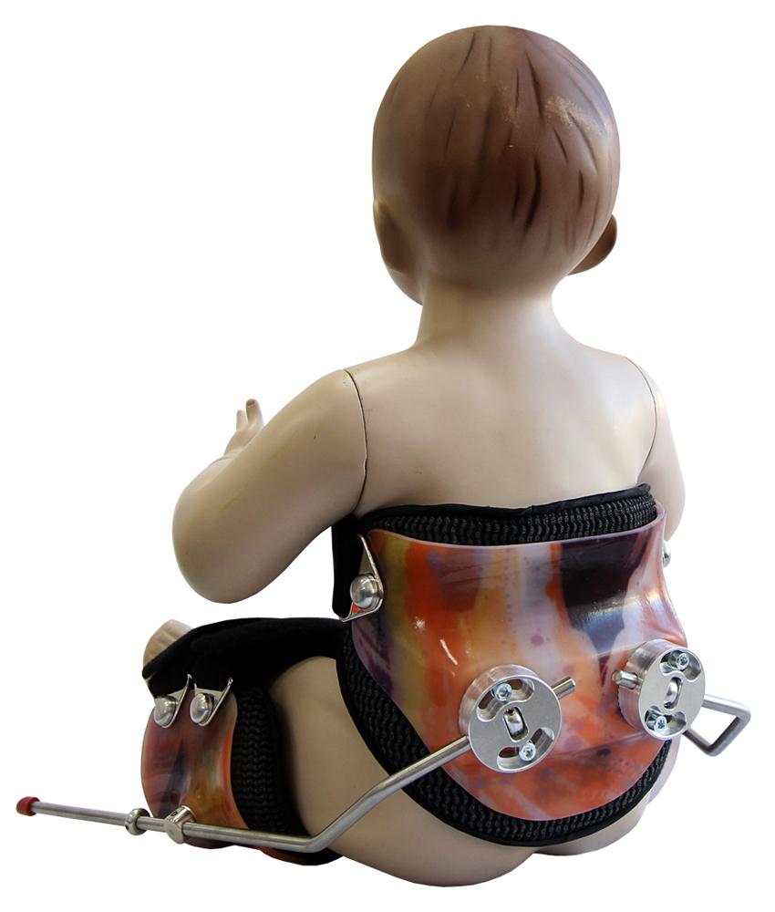 Аппарат на тазобедренный сустав свош акргмиальный разрыв плечевого сустава