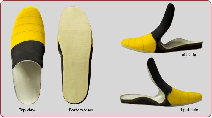 Orthopedic insole — insertable shoe  With filling of forefoot  amputation P-26