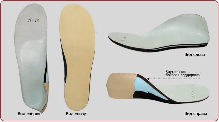 Детские стельки при вальгусной деформации стопы
